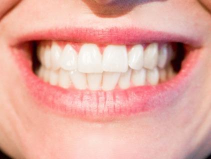 teeth-1652976_1920
